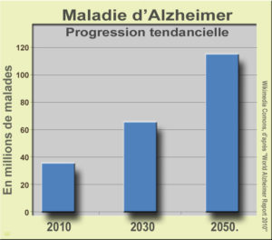 alzheimer1_progression